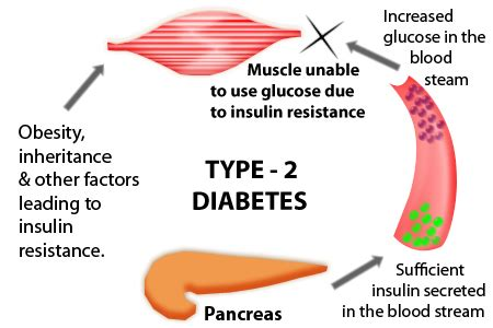 Type 2 diabetes research papers